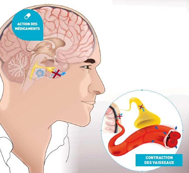 Migraine-medicament