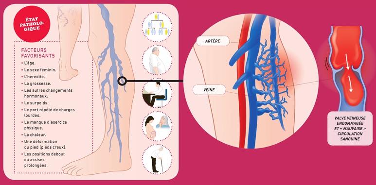 Vocation26-varice-etat-pathologique